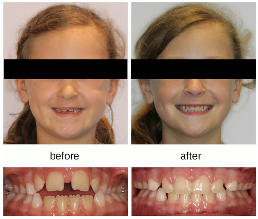 Before and after photo of patient treated with expander in Sudbury