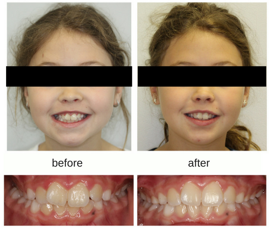 Before and After Photo of Patient treated with an upper jaw expander in Mississauga