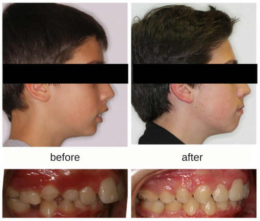 before and after profile photo of a patient treated with the Herbst appliance to show growth of the lower jaw