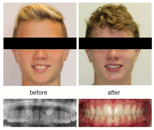 Correction of impacted canines with orthodontics