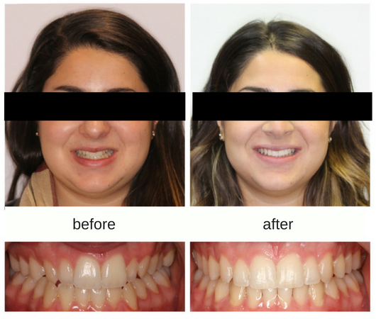 Before and After photo of female patient treated with Invisalign and elastics to correct a midline discrepency