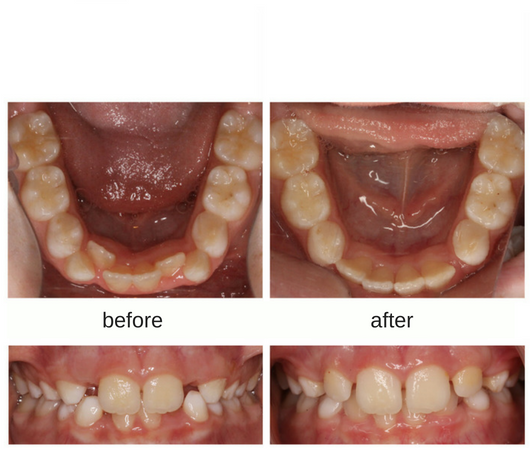 Before and after photo of patient treated with removal of baby teeth in Sudbury, Ontario