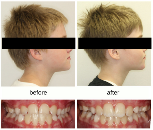 Before and after profile photo of patient treated with protraction face mask with correction of underbite