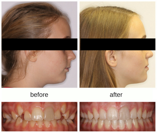 Before and after photo of patient treated with Herbst and Invisalign