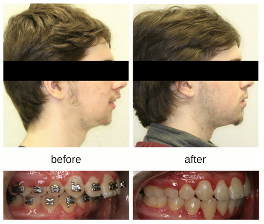 Before and after profile photo of male patient with lower jaw surgery and braces in Mississauga