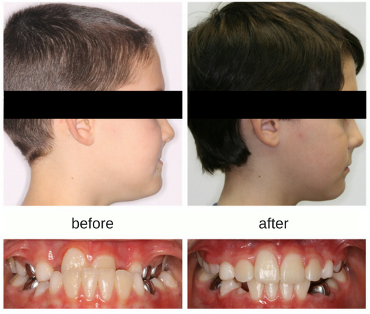 Before and after photo of male patient with correction of underbite using protraction facemask
