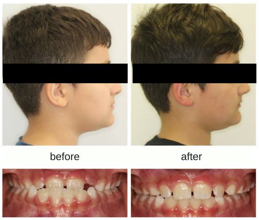 before and after profile photo of patient treated with protraction facemask and underbite correction