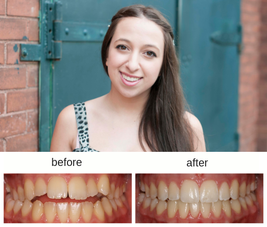 Before and After photo of a female patient treated with Invisalign in Sudbury Ontario