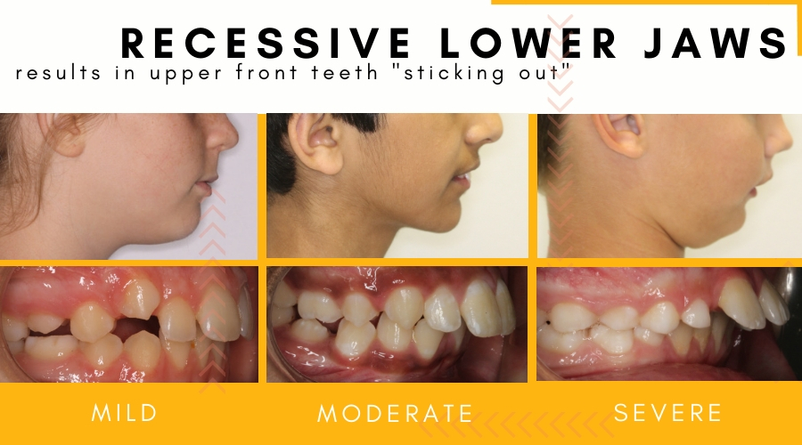 The degrees of lower jaw recession in young children